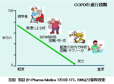 診断 copd 禁煙した人も無縁でない「隠れCOPD」 早期発見の方法は?:推計患者数530万人